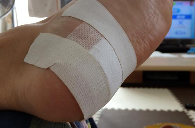 ホクロ除去手術の後